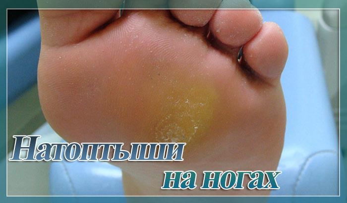Натоптыши со стержнем на ступнях лечение быстрое
