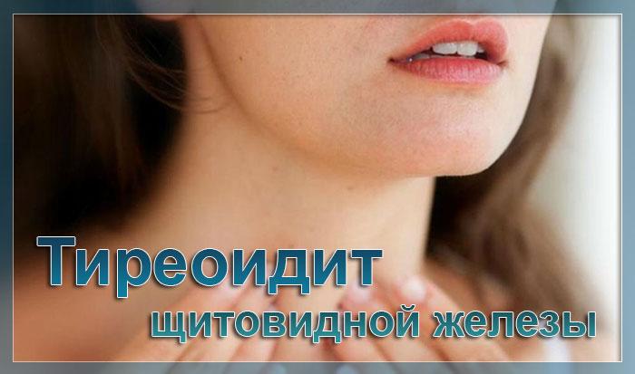 Аутоиммунный тиреоидит щитовидной железы симптомы и лечение